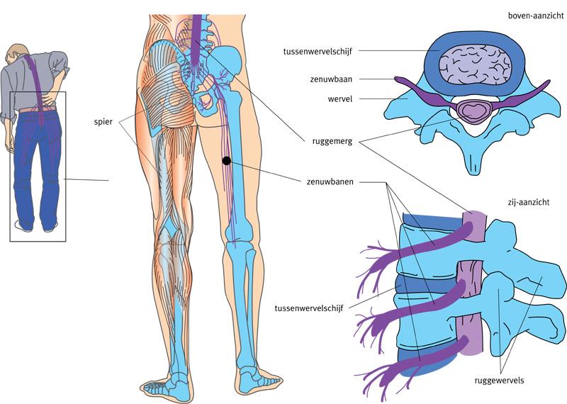 pijnlijke voeten en benen