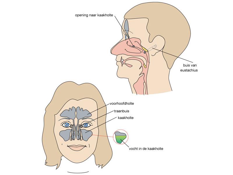 voorhoofdsholteontsteking neusspray