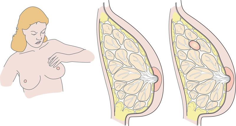 pijnlijke borsten overgang