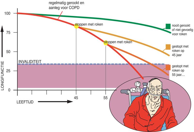 Afbeelding COPD