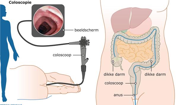 Lucht via anus naar binnen