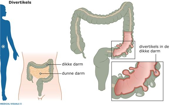 last van dikke darm symptomen