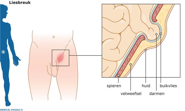 niezen pijn onderrug
