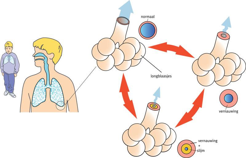 nhg-afbeelding-astma.jpg
