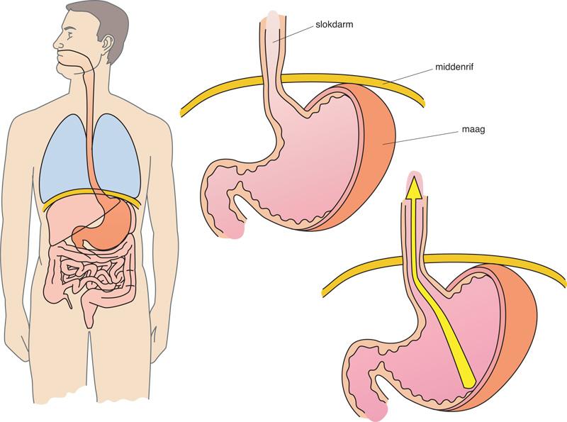 opgezette buik door alvleesklier