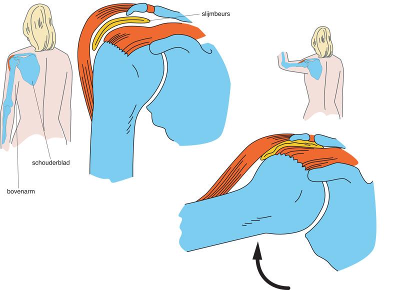 spierpijn schouder