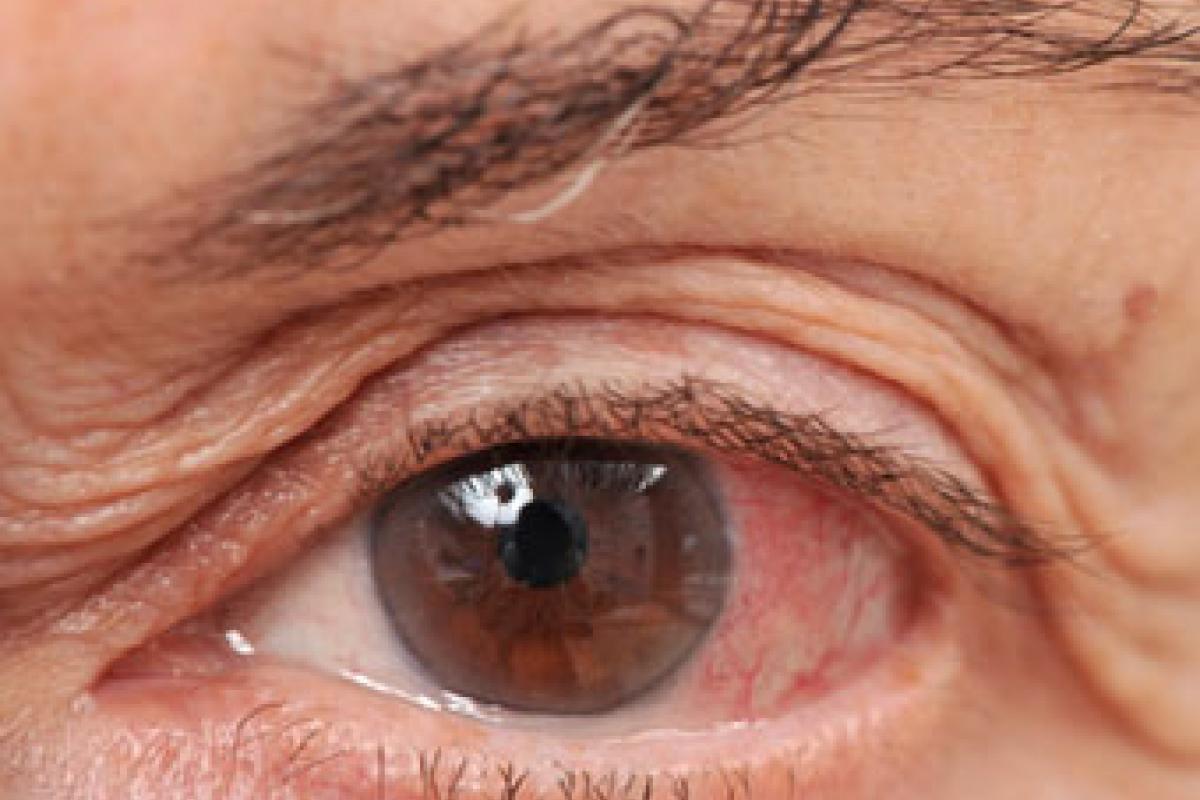 oog is rood