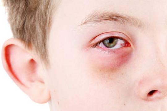 wat is een allergische reactie