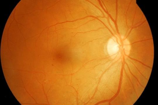 glaucoom laserbehandeling