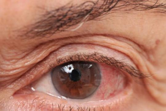 rood en pijnlijk oog